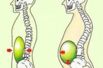 鼠径ヘルニアの手術後、腹圧をかけてピラティスをしてはいけないのか?❷